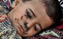 Câu chuyện thương tâm đằng sau bức ảnh bé 2 tuổi bị ruồi bu kín mặt