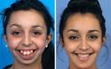 Màn lột xác hoàn hảo của cô gái 20 tuổi nhờ phẫu thuật thẩm mỹ: Chỉ có thể là quá thần kỳ!