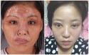 Ham đẹp như gái Hàn, nhiều phụ nữ Trung Quốc ôm hận thiên thu vì phẫu thuật thẩm mỹ hỏng