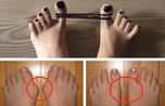 Mẹo biến bàn chân to bè biến dạng vì đi giày cao gót hồi phục như ban đầu