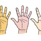 Xem tình trạng da tay để dự đoán tương lai bản thân