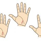 Xem đoạn cuối đường chỉ tay sinh mệnh, dự đoán sức khỏe của con người