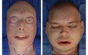 Cấy ghép mặt thành công cho người lính cứu hỏa bị lửa hủy hoại toàn bộ gương mặt