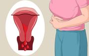 Tháng nào cũng đau bụng kinh dữ dội kèm một số hiện tượng lạ có thể là dấu hiệu cảnh báo những căn bệnh tiềm ẩn sau