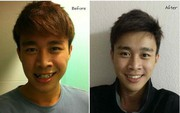 Loạt ảnh chứng minh: Răng đẹp, tóc hợp giúp lên đời nhan sắc tới cỡ nào!