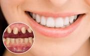 """Bọc răng sứ xong có hết """"hô"""" hay không, và câu trả lời sẽ khiến nhiều người bất ngờ"""