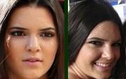 """Hãng mỹ phẩm trị mụn cuối cùng đã phản ứng sau vụ thảm họa quảng cáo khiến Kendall Jenner hứng """"gạch đá"""""""