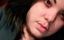 Cô gái mọc râu ria rậm rạp như đàn ông nhưng vẫn kiếm được người yêu thương hết lòng