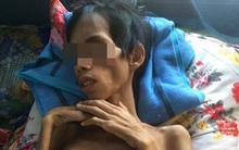 9X Kon Tum bị đâm vì ghen tuông đã qua đời