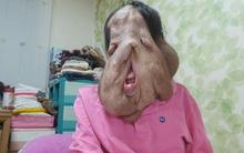 Cộng đồng mạng Hàn Quốc kêu gọi giúp đỡ người phụ nữ có gương mặt biến dạng vì mắc bệnh lạ