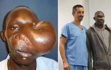 Phép màu đã đến với người đàn ông xấu số phải mang khối u mặt khổng lồ