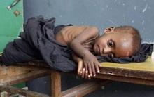 Chùm ảnh những đứa trẻ châu Phi gầy trơ xương vì đói sẽ khiến bạn không dám bỏ thừa đồ ăn thêm nữa