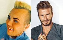 Thanh niên thất nghiệp dùng 500 triệu tiền trợ cấp để phẫu thuật giống David Beckham
