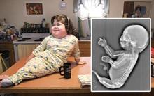 """Bà mẹ trẻ dứt ruột bỏ con vì thai nhi """"mọc"""" đuôi cá"""