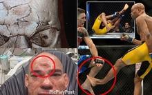 10 chấn thương ghê rợn chứng minh MMA là môn thể thao bạo lực nhất thế giới