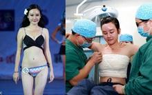 """Á quân cuộc thi sắc đẹp Trung Quốc gây bất ngờ khi tiết lộ toàn bộ quá trình """"dao kéo"""""""