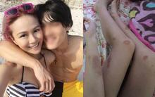 Ký ức kinh hoàng về những lần bị người tình bạo hành của thành viên nhóm nhạc Hồng Kông