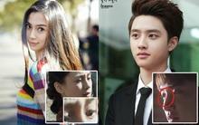 """Mỹ nam mỹ nữ Hoa - Hàn và những bằng chứng """"dao kéo"""" vùng mũi"""