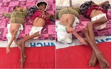 Những bộ xương sống di động: Hình ảnh gây sốc về những đứa trẻ khốn khổ mắc kẹt trong chiến tranh