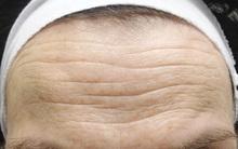 Nếp nhăn không chỉ là chuyện đẹp xấu, mà còn cảnh báo sức khỏe lâm nguy