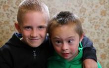 Clip đáng yêu của anh và em trai mắc hội chứng Down đã chứng minh tình yêu có thể làm được tất cả