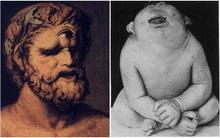"""Người """"khổng lồ một mắt"""" - nhân vật tưởng thần thoại hóa ra có thật"""