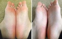 Bàn chân khô nẻ, sần sùi cỡ nào cũng trở nên trắng hồng nhờ nguyên liệu có ngay trong phòng tắm