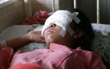 Xót thương nữ sinh xinh đẹp bị mảnh vỡ mũ bảo hiểm đâm thủng mặt