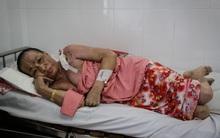 Không móc cống nghẹt, người phụ nữ ở Sài Gòn bị tạt nồi thịt sôi vào người gây bỏng nặng
