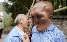 Người đàn ông mặc cảm vì khuôn mặt dị dạng như người ngoài hành tinh