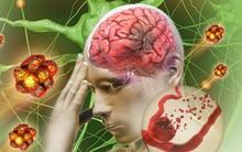 Công nghệ mới giúp giảm thiểu khả năng tử vong ở người bị tai biến, đột quỵ