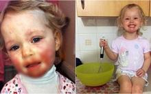 Anh: Chỉ vì nụ hôn của 1 người họ hàng mà cô bé 2 tuổi đã phải chịu đau đớn nhường này