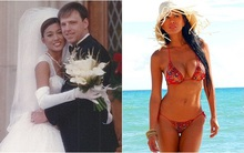 Để chứng minh y thuật cao siêu của chồng, người vợ không ngại ngần phẫu thuật thẩm mỹ vô số lần