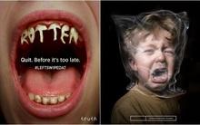 Bạn sẽ có thêm động lực cai thuốc lá sau khi xem xong chùm ảnh kinh hoàng này
