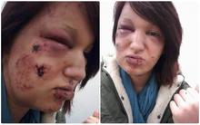 Khuôn mặt đáng thương của cô gái trẻ bị người yêu cắn 21 nhát vào mặt vì ghen tuông