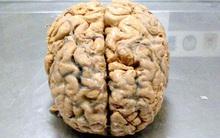 Liệu con người có tồn tại nếu... không có não?