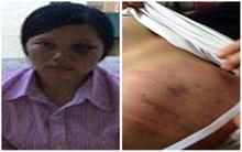 Yên Bái: Bị đánh đến mức nhập viện chỉ vì khuyên chồng đừng ép duyên con gái 17 tuổi