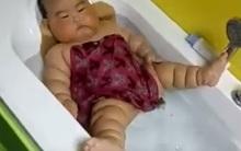 Sự thật bất ngờ đằng sau hình ảnh em bé bụ bẫm người nần nẫn ngấn