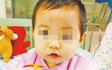 Bé gái 2 tuổi bị đũa cắm vào mắt, chạm tới sọ khi đang ăn cơm