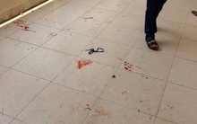 Vừa ra khỏi lớp, 2 sinh viên bị người lạ dùng gạch đánh vào đầu