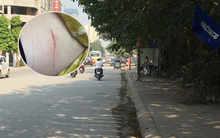 Cô gái trẻ ở Hà Nội bị kẻ gian cắt quai túi xách đến rách da ngay trên phố gây xôn xao