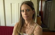 Người phụ nữ có làn da chấm bi sần sùi với gần 6.000 khối u