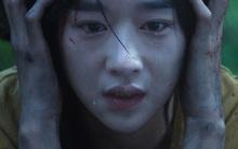 Nữ diễn viên Hàn Quốc bị bóng đè liên tục suốt 4 tháng quay phim