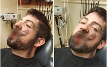 Thuốc lá điện tử phát nổ trong miệng, thanh niên trẻ đi luôn 7 chiếc răng