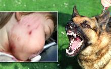 Bé gái 18 tháng tuổi bị chó cắn rách mặt, chủ chó thờ ơ đứng nhìn
