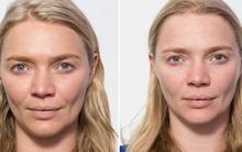 Siêu mẫu Jodie Kidd và cuộc thử nghiệm thức khuya: Chỉ trong 5 ngày mà da bị tàn phá khủng khiếp