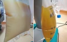 Nhìn cứ ngỡ túi sữa đặc, hóa ra lại là huyết tương của người đàn ông ăn quá nhiều thịt