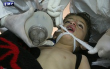 Nạn nhân của chất độc hóa học trong vụ tấn công thảm họa Syria đã phải chịu đựng những gì?