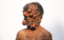 """Người đàn ông bị gắn mác """"quái vật"""" vì làn da mọc kín đặc các khối u sần sùi"""
