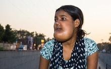 """Ấn Độ: Căn bệnh quái ác khiến thiếu nữ mang khuôn mặt của """"quỷ dữ"""" và bị cả xã hội ruồng bỏ"""